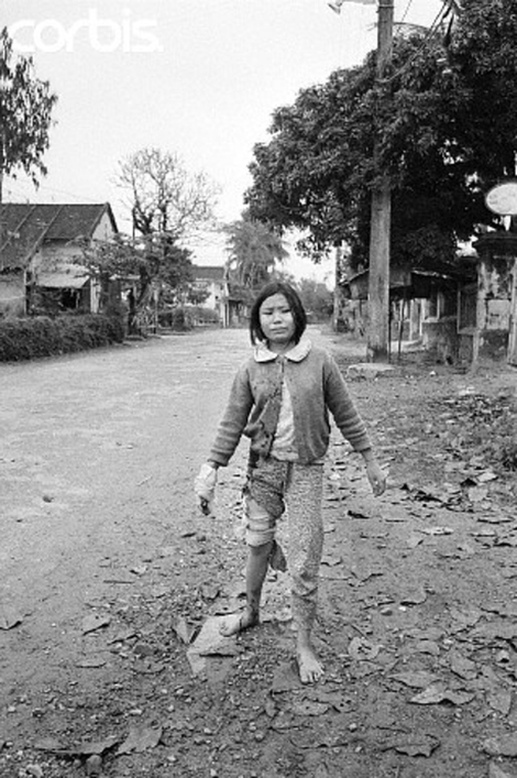 Young Wounded Vietnamese Girl